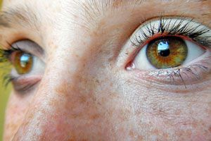 Cómo limpiar manchas en la cara