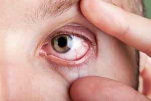 El enrojecimiento de ojos es una molestia frecuente. Hay algunos trucos caseros para aliviar los ojos rojos.