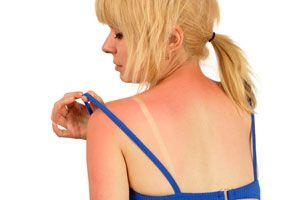Ilustración de Remedios Caseros para Aliviar Quemaduras de Sol