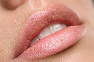 Remedios naturales para cuidar la piel de los labios. cómo proteger la piel de los labios con remedios caseros. Remedios para cuidar los labios
