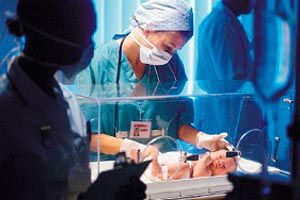 Bebés prematuros: causas y tratamiento
