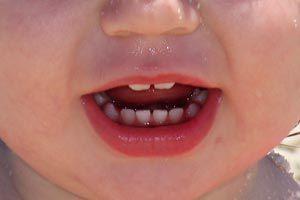 Qué hacer si a tu hijo le cambia el color de sus diente