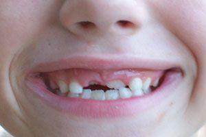 El ratón Pérez y otras historias sobre la caída de los dientes de leche