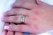 Cómo quitar los anillos de las manos hinchadas